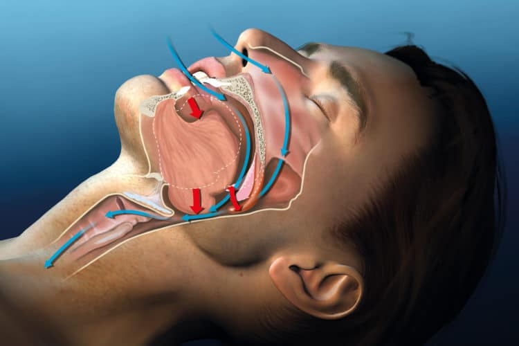 Sleep Apnea Tests