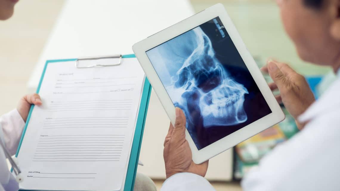 Symptoms of TMJ Disorder